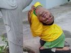 Brasileiro de 37 anos nasceu com a cabeça virada para baixo
