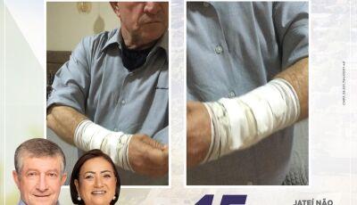 JATEÍ: Candidato a reeleição pelo PSDB, Eraldo Leite é agredido e coligação divulga Nota de Repúdio