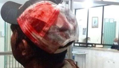 Motorista é ferido com golpes de facão na cabeça após briga de trânsito