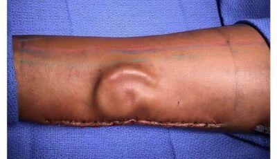 Cirurgiões transplantam orelha 'criada' no antebraço de soldado