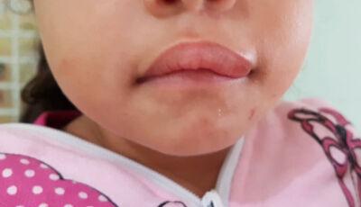 Padrasto acerta murro na boca de criança ao tentar agredir esposa