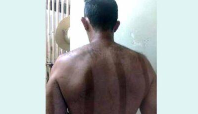 Polícia Militar prende homem que atacou esposa com tesoura