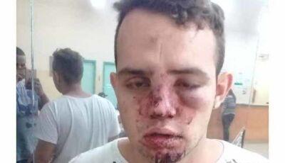Com rosto ferido, estudante denuncia truculência de seguranças de boate