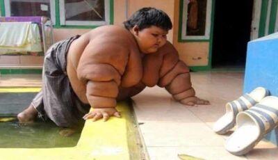 Menino de 10 anos viciado em Miojo e Refrigerante atinge 190 quilos