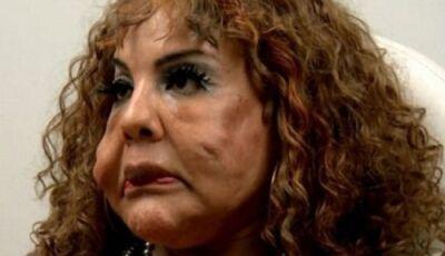 Transexual tem rosto deformado após injetar cimento