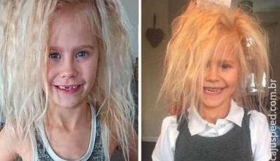 Menina de 7 anos tem cabelo 'impenteável' por causa de condição raríssima