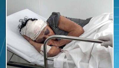 Após assalto, idosa de 81 anos espancada por bandidos, morre