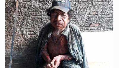 Morador de rua é espancado em Caarapó