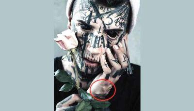 'Jovem mais modificado do mundo' implanta aranhas sob a pele das mãos