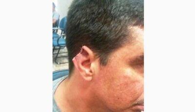 Homem se recusa a pagar espetinho e mulher arranca orelha dele no MS