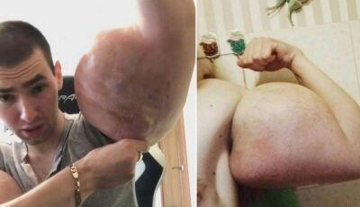 'Popeye russo' faz apelo por cirurgia para salvar os braços 'deteriorados'