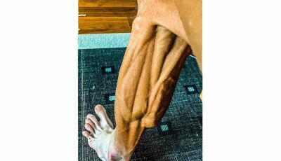 Ciclista afastado por doping posta foto chocante de perna após voltar a competir