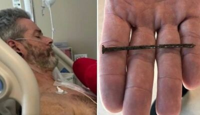 Carpinteiro fica com prego de 7,5cm cravado no coração após acidente com pistola