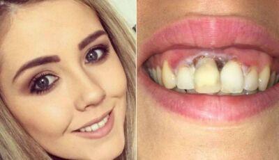 Mulher fica com queimadura na gengiva após tratamento 'barato' para clarear os dentes