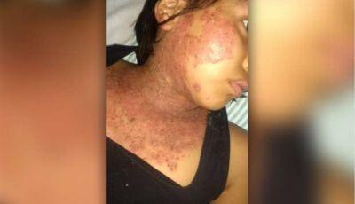 Milleny enfrenta doença do pênfigo com garra e R$ 10 pode ajudar no tratamento