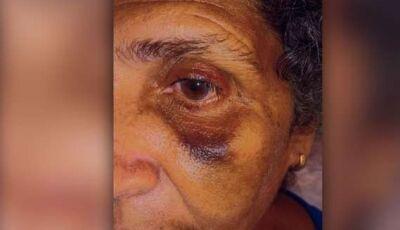 Auxiliar de limpeza é agredida a vassouradas por funcionário de escola municipal em Campo Grande