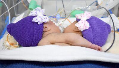 Mesmo sem cirurgia, gêmeas siamesas não resistem e morrem em MS