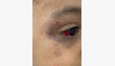 Menino de 3 anos é torturado com fio de celular pelo padrasto por quase 24h após fazer xixi na cama