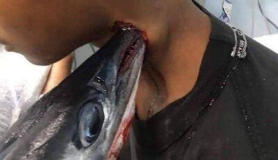Peixe-agulha salta da água e atravessa o pescoço de adolescente