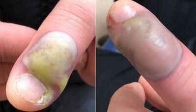 Paciente é operado de emergência após infecção por roer as unhas