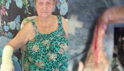 Idosa tem o braço cortado ao retirar gesso em hospital municipal: 'Ela chorava, e ele continuava'