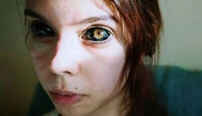 Modelo que teve os olhos tatuados está perdendo a visão