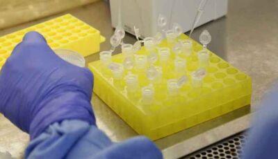 Resultado dá negativo para 1° caso suspeito de coronavírus em Bonito