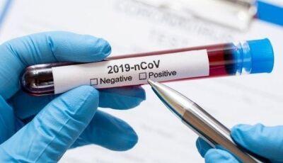 Caso de coronavírus da positivo e chega no distrito de Culturama