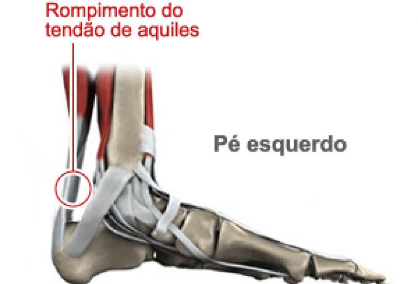 Confira o local exato da lesão (Foto: Arte Globo Esporte)