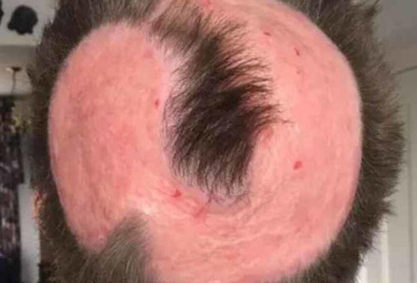 Médicos dizem que não vai nascer cabelo na área afetada (Foto: Reprodução | Facebook)