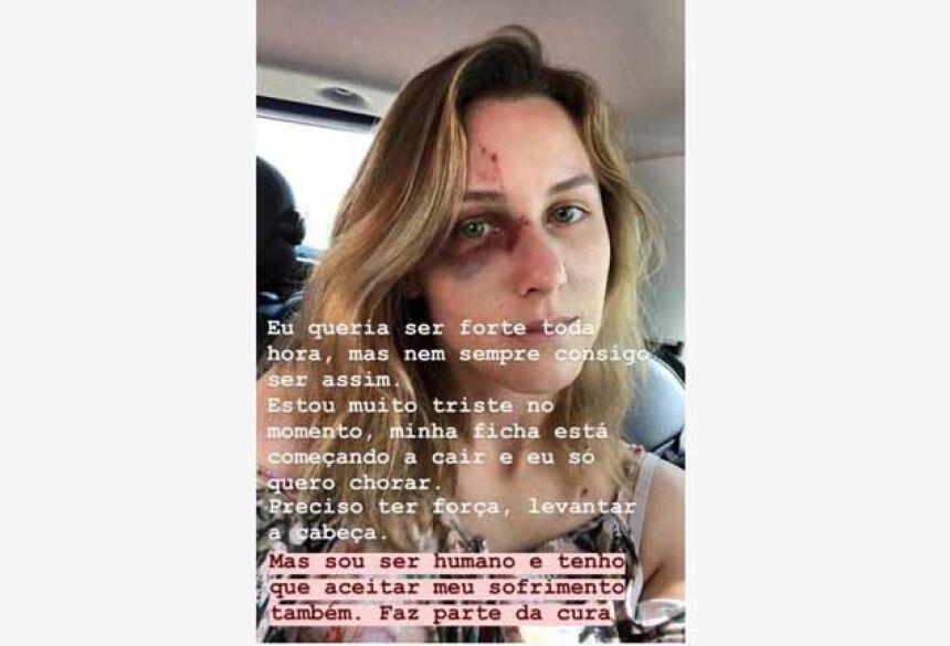 Melissa foi agredida pelo ex-namorado Foto: Instagram/Reprodução