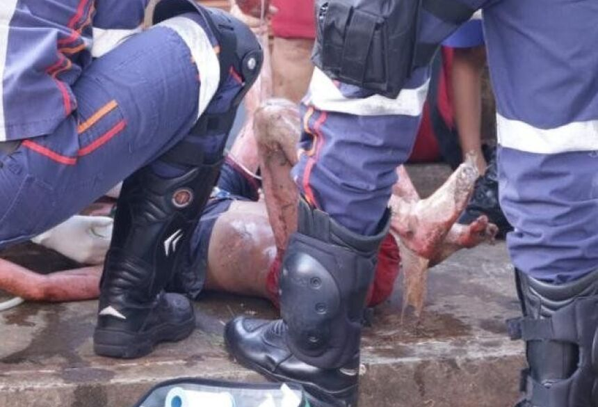 Criança foi socorrida com mais de 50% do corpo queimado. (Foto: Kísie Aionã)