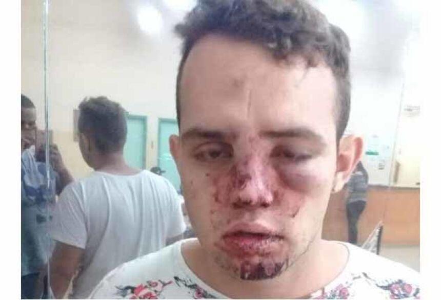 Rafael passou por exames e não fraturou nenhuma parte do corpo, no entanto, está tomando remédio para dor. (Foto: Arquivo pessoal)