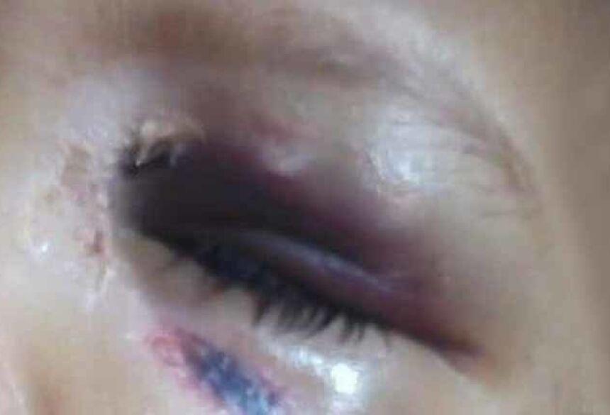 Menina de 3 anos está com olho roxo, aparente queimadura na boca e queda de cabelo. Tia nega agressões. / Foto: Reprodução