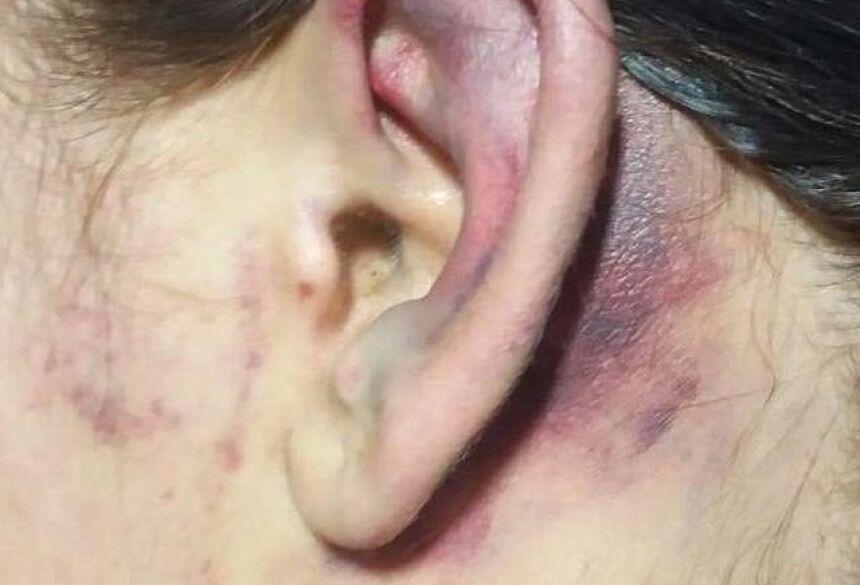 Vítima ficou com hematomas pelo corpo todo. (Foto: Reprodução/JP News)