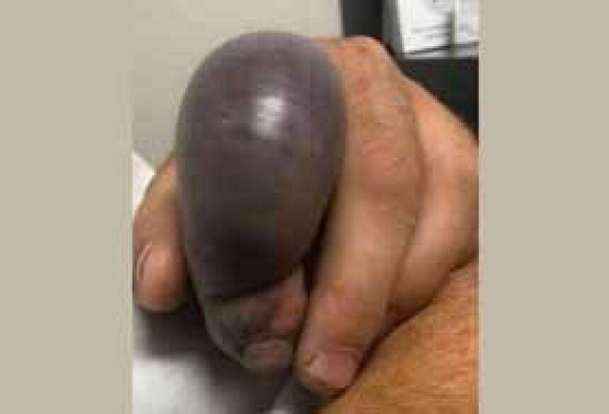 Dedo de 'beringela' de jardineiro após picada de cascavel Foto: Reprodução/Fox17