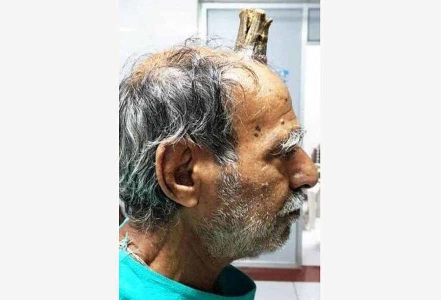 Shyam Lal Yadav e o 'chifre' de 10cm Foto: Reprodução