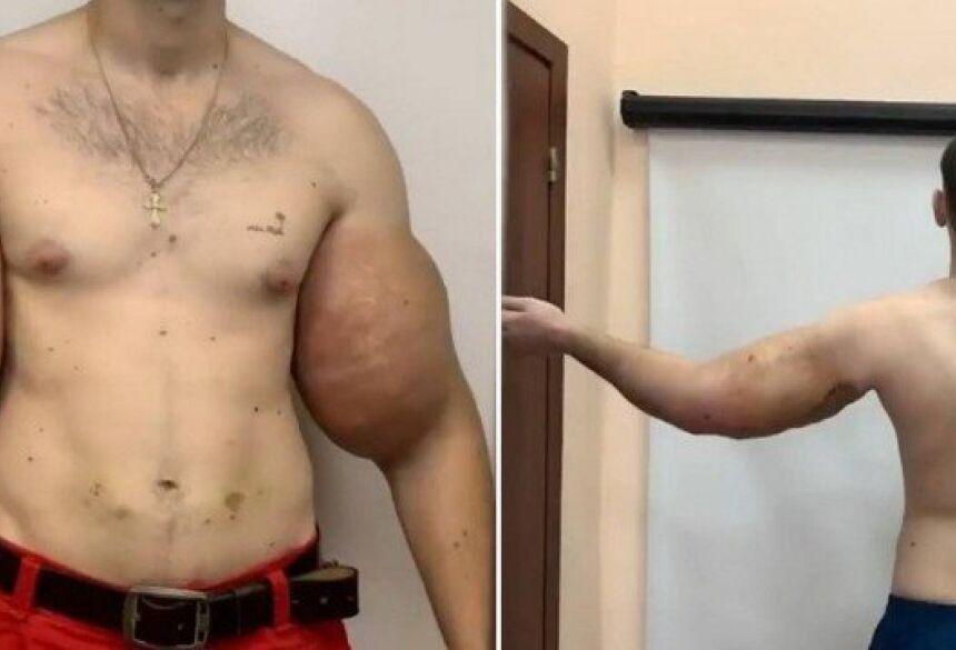 Kirill antes e depois da cirurgia Foto: Reprodução