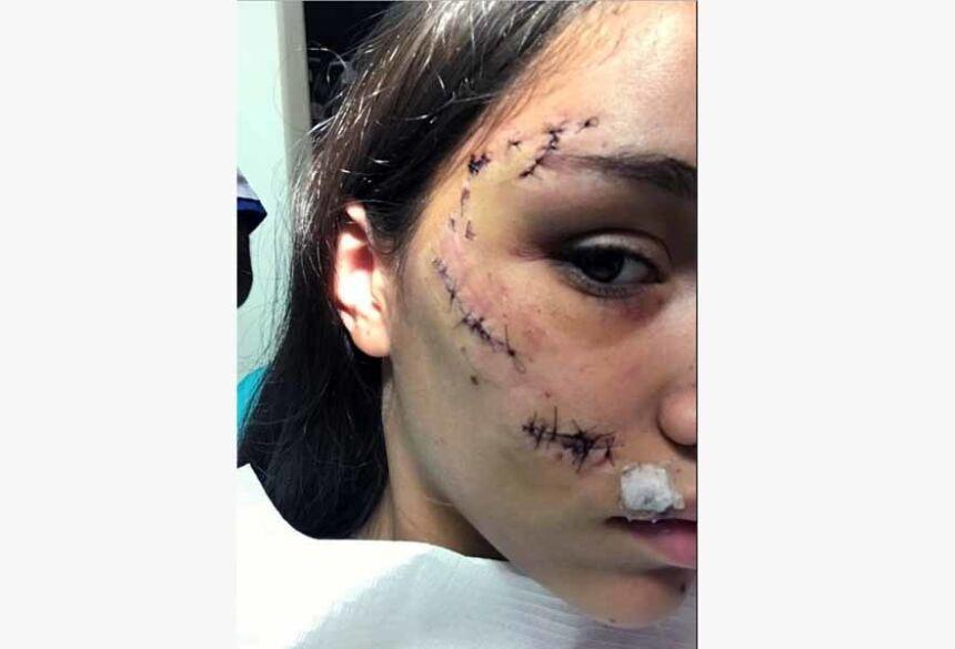 Jovem argentina mostra como ficou o rosto depois de mordida de cachorro — Foto: Reprodução/Twitter
